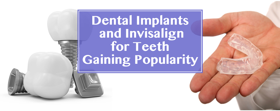 Dental Implants and Invisalign on Teeth Gaining Popularity in Las Vegas