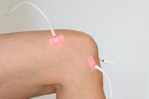 Electrode Therapy